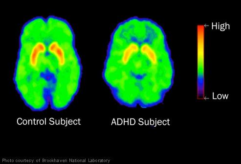 Fullt klart mindre aktivitet i ADHD-hjärnan...